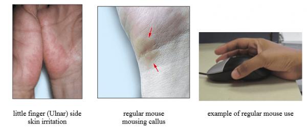 גירוי עור כף היד בשימוש בעכבר טופ קומרס