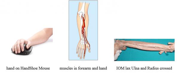 שרירי היד בשימוש בעכבר טופ קומרס