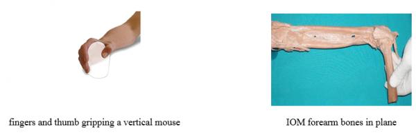2 שרירי היד בשימוש בעכבר טופ קומרס